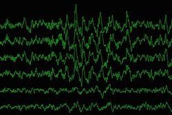 Brain waves during slow-wave sleep are measured as a study participant sleeps. (Image: Yo-El Ju)