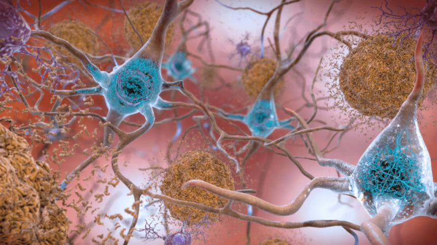 In the Alzheimer's-affected brain, abnormal levels of the amyloid beta protein clump together.